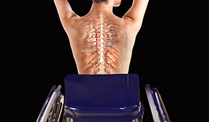 Spinal Cord Rehabilitation Course