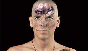 mid aged man with head trauma showing his brain soft including arteries, veins and soft tissue structure